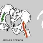 あなたの担当する頸部骨折患者はこんな問題抱えていませんか?
