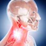 medical 3d illustration of a painful neck