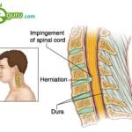 Cervical-Disc-1