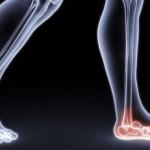 DFHG116_foot-pain-arthritis_FS