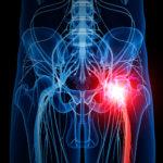 pain-sciatic_sciatica_nerve_pain