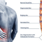 back_pain_ayurvedic_treatment