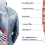 back_pain_ayurvedic_treatment 2