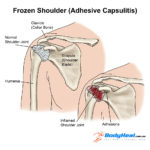 frozen-shoulder-injury-2