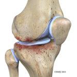 knee-osteoarthritis_0 2