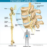 lower-back-pain-s6-common-causes1