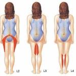 lumbar_herniated_prob_areas
