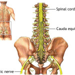 sciatic_pain