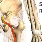 sciatica-relief