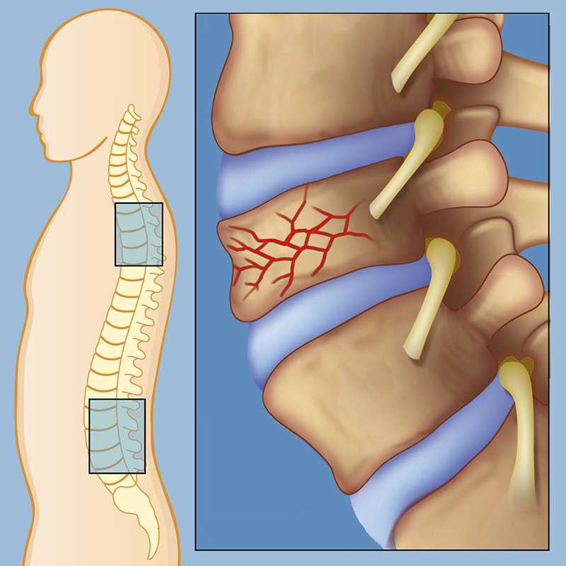 spinal-compression-fracture-rev-lg