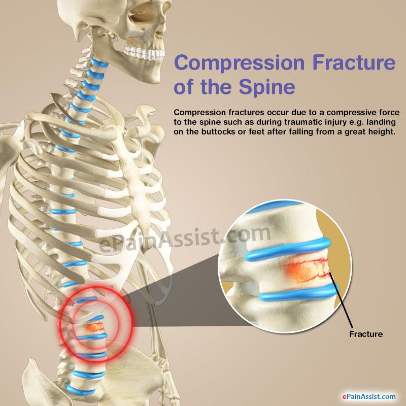 compression-fracture